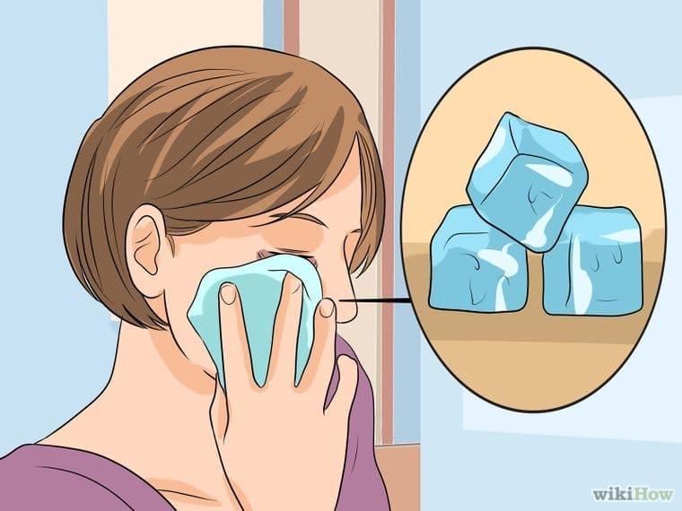 Sơ cứu Bầm mắt