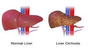 10 biến chứng thường gặp của xơ gan